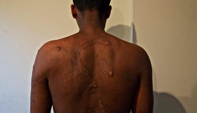 Eritreans suffer rape, violence in Sudan, Egypt torture camps