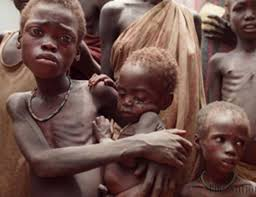 bambini affetti di denutrizione grave in Sud Sudan
