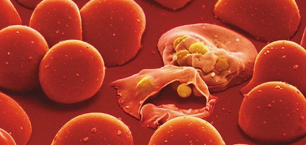 Attacco del Plasmodio della malaria