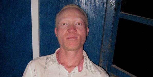 L'albino (zeruzeru in lingua swahili) Robinson Mkwama salvato dalla polizia in Tanzania